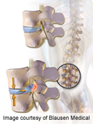 After treatment, many people have visible evidence of a herniated disc without any symptoms.