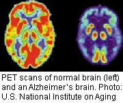 Study looked at seniors' blood sugar along with their brain scans.