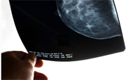 But subset of women who took Clomid for more than 12 cycles appeared more likely to get invasive breast cancer.