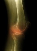 Large data review found no effect against osteoporosis  at most sites tested in healthy adults.