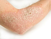 Researchers followed patients with chronic skin condition for 7 years.