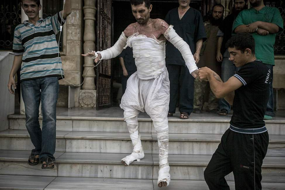 FILE - A Syrian man with more than half his body burnt from an air strike leaves a field hospital to go back home at a village turned into a battlefield with government forces in Idlib province, northern Syria, Sept. 22, 2013. (AP Photo/Narciso Contreras, File)