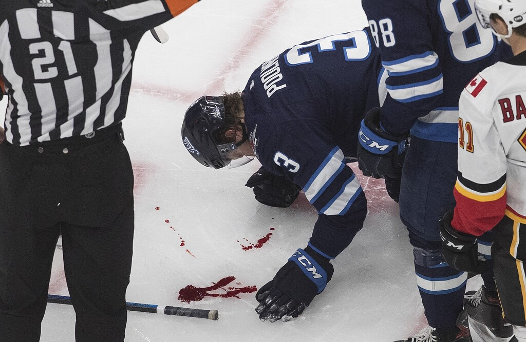 Tucker Poolman was hit in the face by a puck in the second period. (Jason Franson / The Canadian Press)