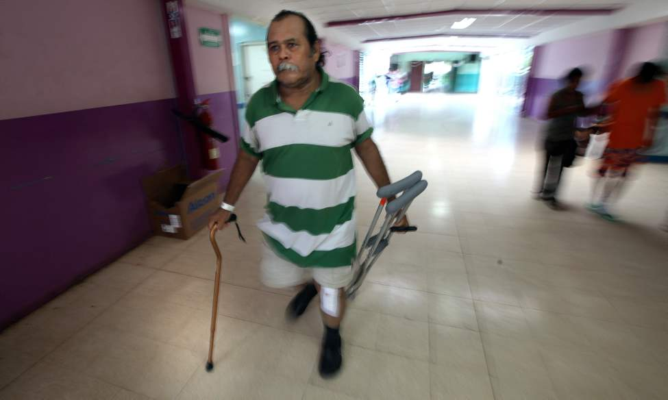 "Using a single cane and carrying his crutches Juan Canda leaves the hospital in Managua for home four days after  ""bi-lateral"" surgery where both knees were replaced."
